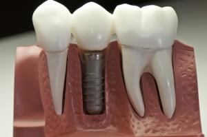 dental implanst ashland oregon, tooth replacement ashland oregon, dental bridges ashland oregon, dentures ashland oregon, tooth extraction ashland oregon